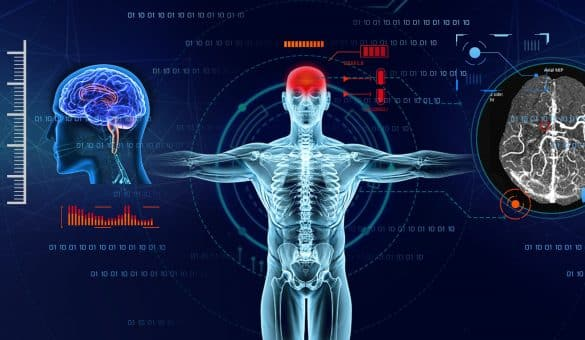 artificial intelligence in radiography